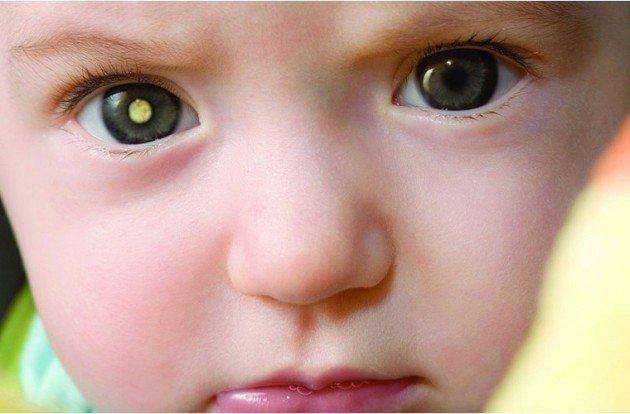 Cách chăm sóc mắt cho trẻ sinh non, phòng bệnh võng mạc