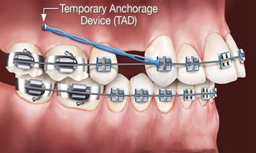 Các kiểu răng vẩu thường gặp
