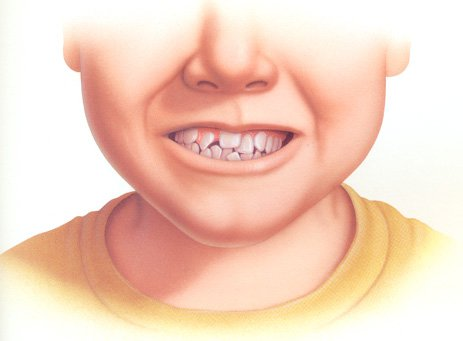 Răng mọc lệch xử lý cách nào?