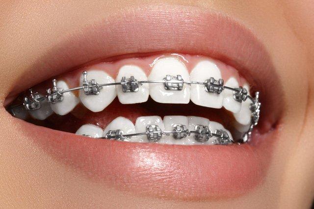 Chỉnh răng mọc chen chúc