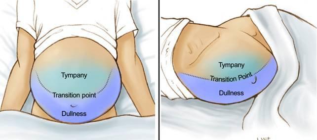 Chẩn đoán tràn dịch màng bụng