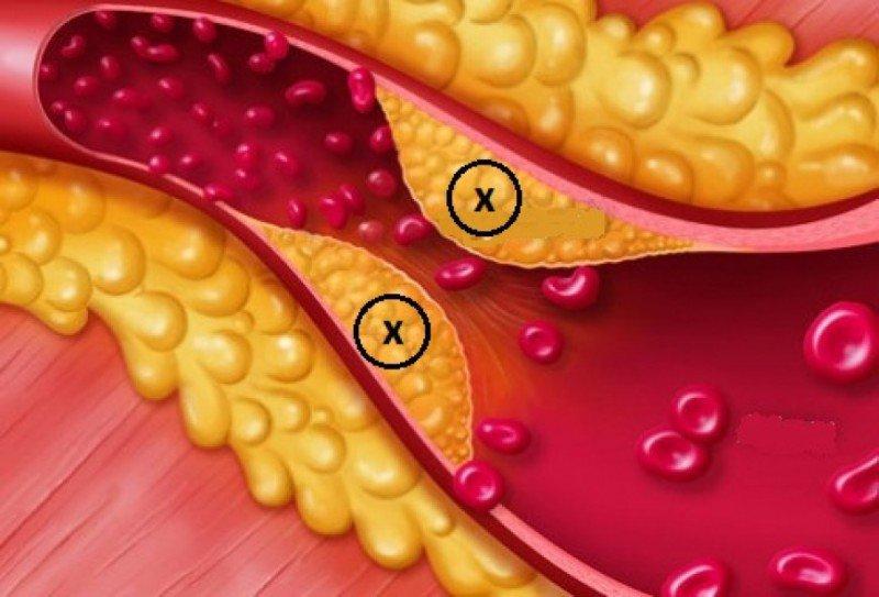 Điểm mặt các nguyên nhân gây rối loạn lipid máu