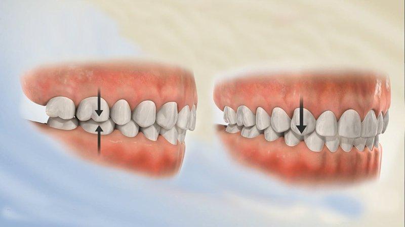 Tác hại và cách điều trị răng lệch khớp cắn