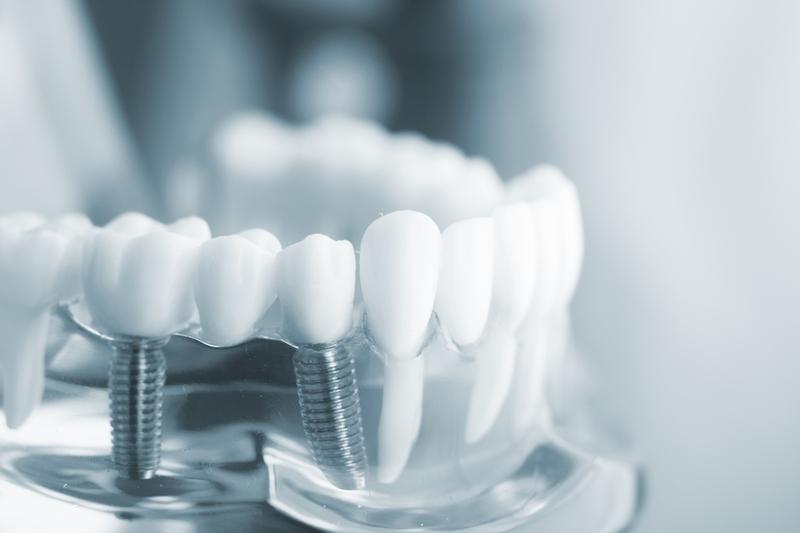 Tiêu xương hàm răng gây ảnh hưởng gì?