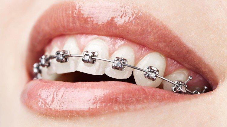 Vì sao niềng răng mắc cài kim loại vẫn được ưa chuộng?
