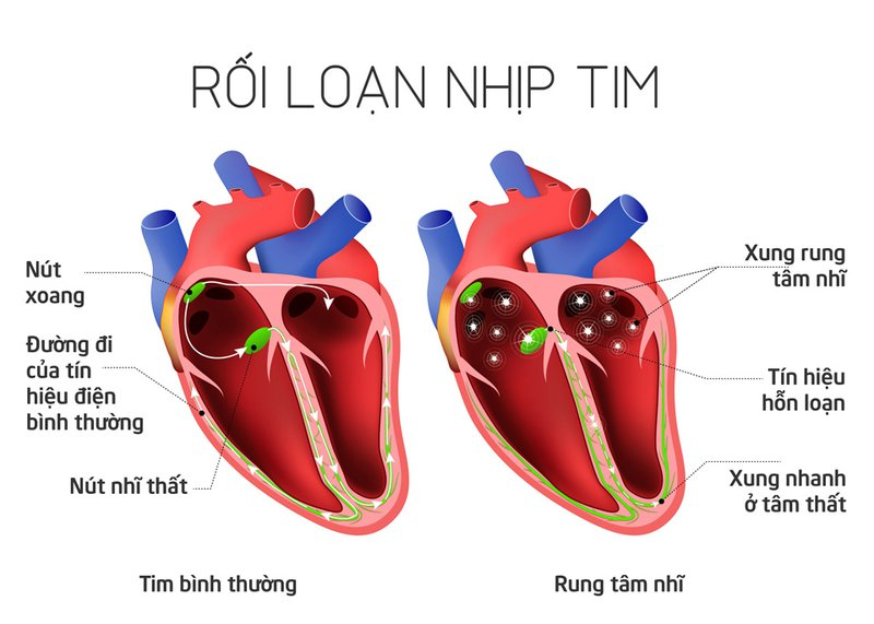 Chẩn đoán và điều trị rối loạn nhịp tim chậm thế nào?