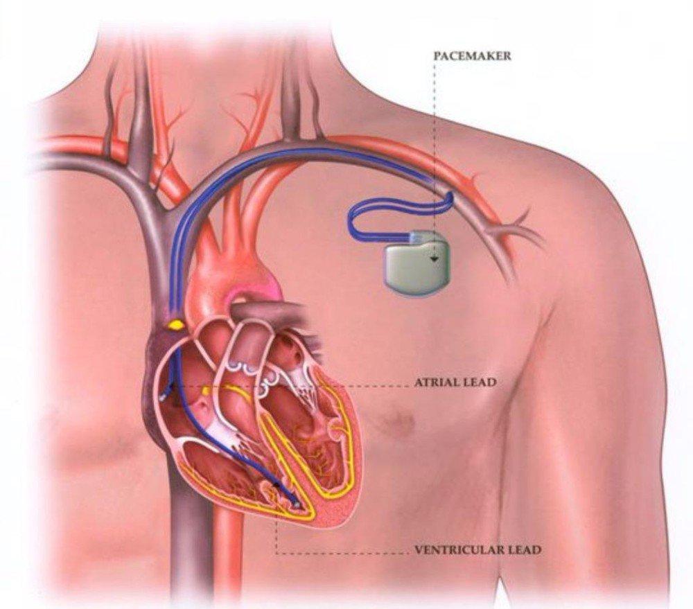 Máy tạo nhịp tim hoạt động thế nào?