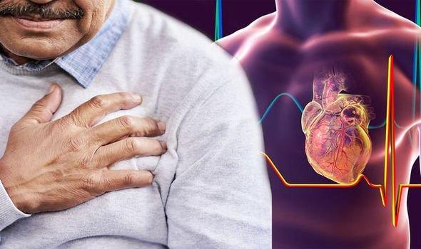 Viêm màng ngoài tim