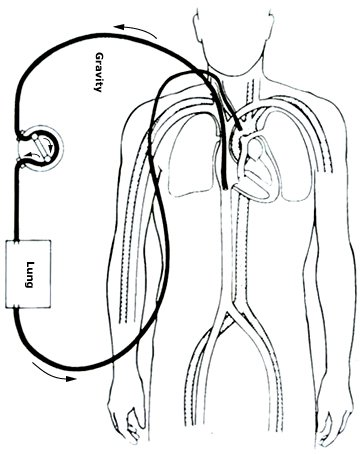 Trao đổi oxy qua màng ngoài cơ thể
