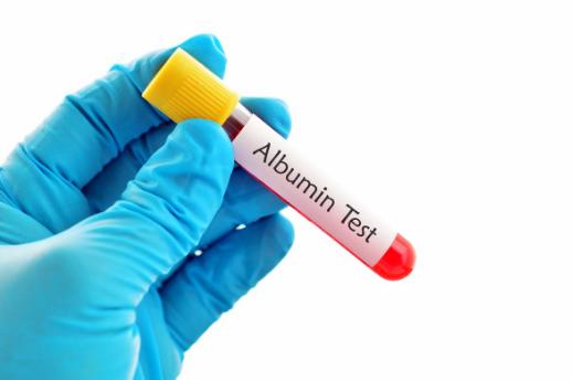 Định lượng Albumin