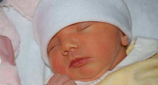 Phân biệt vàng da sinh lý và vàng da do teo đường mật ở trẻ sơ sinh