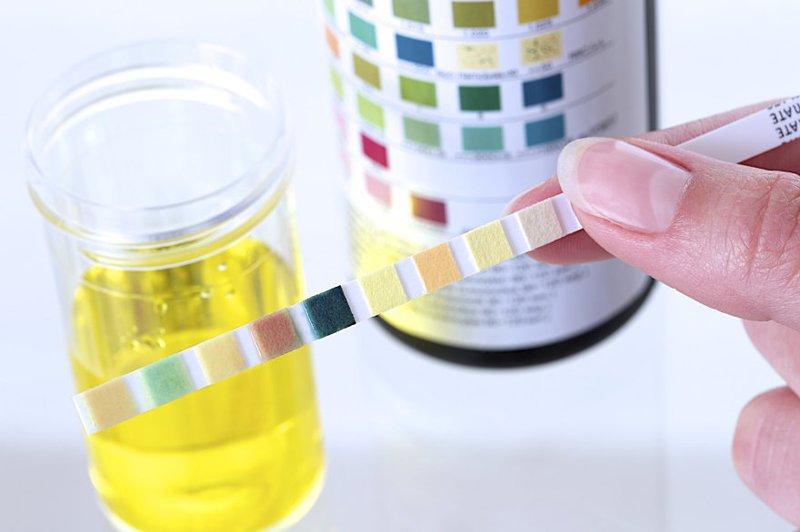 Chỉ số PH trong xét nghiệm nước tiểu