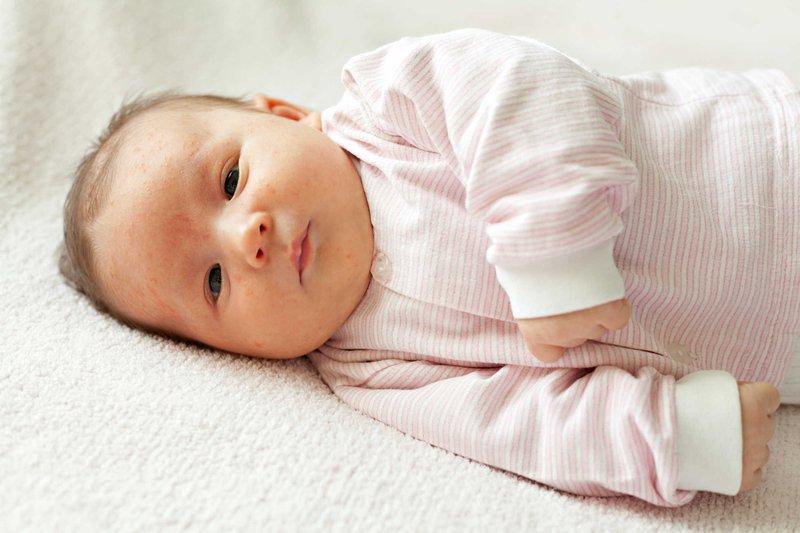 Nhiễm khuẩn sơ sinh là gì