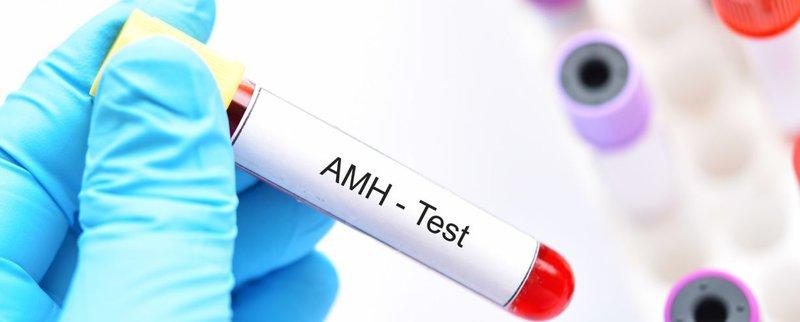 Những lưu ý khi xét nghiệm nồng độ AMH đánh giá khả năng dự trữ buồng trứng