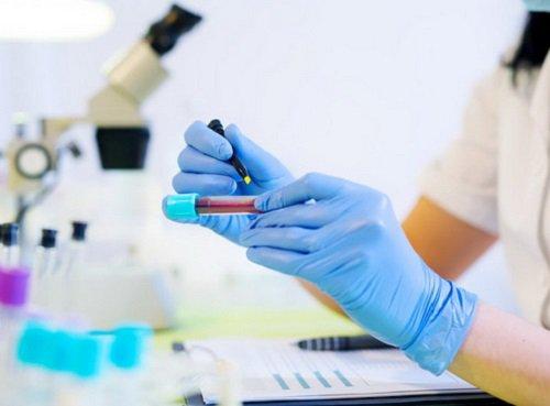 Vai trò của xét nghiệm AMH đánh giá khả năng sinh con ở người suy buồng trứng sớm