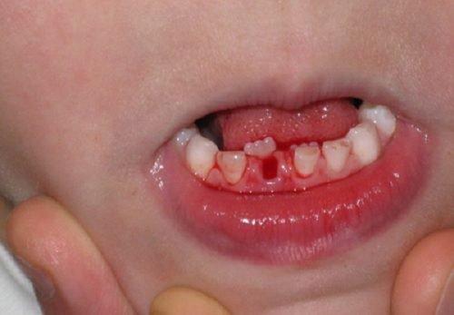 Tuổi mọc răng sữa, răng vĩnh viễn và thay răng ở trẻ em