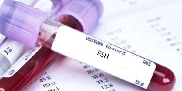 Chỉ số FSH như thế nào là bình thường?
