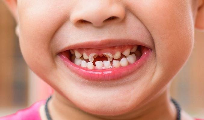 Làm thế nào khi bé bị sún răng sớm
