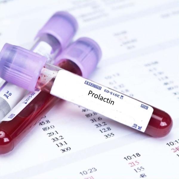 Các nguyên nhân gây tăng prolactin máu