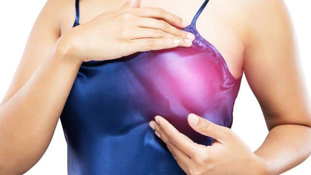 Cẩn trọng với các nốt vôi hóa tuyến vú