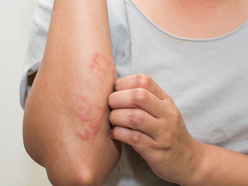 Nguyên nhân và triệu chứng cảnh báo viêm da tiếp xúc