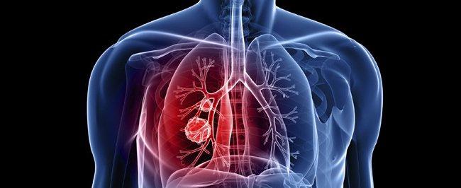 Thế nào là tăng áp động mạch phổi