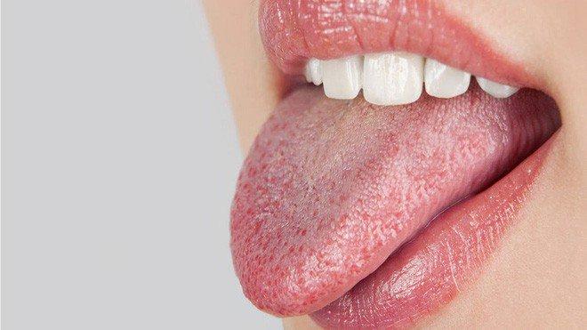 Khô miệng: Nguyên nhân, triệu chứng và điều trị | Vinmec