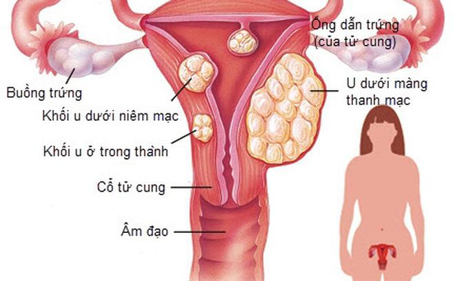 Ưu điểm của nút mạch điều trị u xơ tử cung
