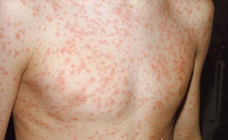 Chẩn đoán và điều trị rubella bẩm sinh