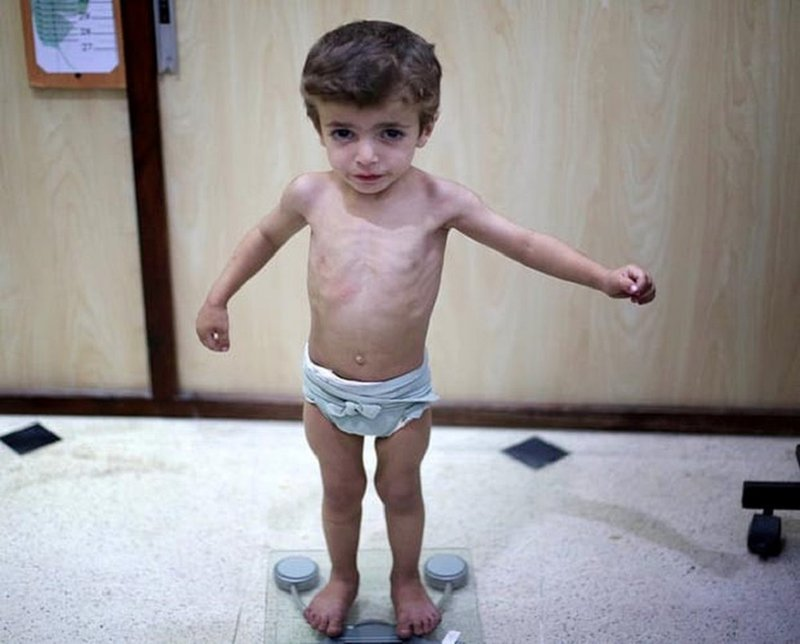 Điều trị suy dinh dưỡng cấp tính ở trẻ | Topmilk.com.vn