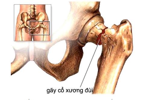Gãy cổ xương đùi ở người cao tuổi