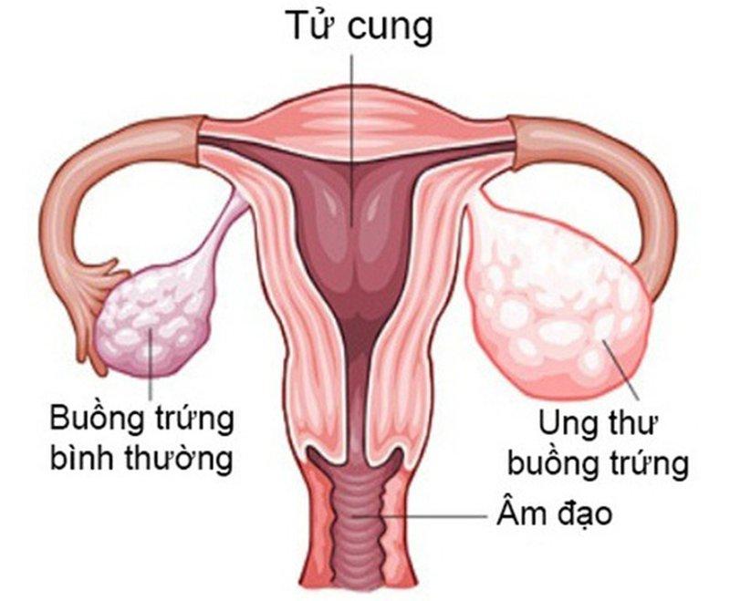 Đời sống tình dục sau phẫu thuật cắt tử cung
