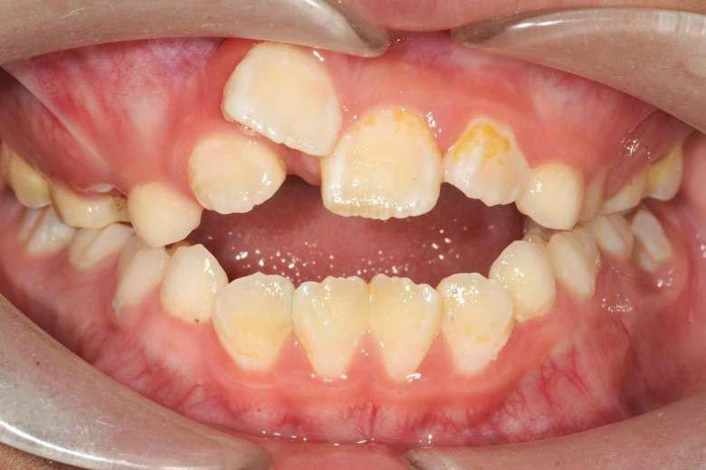 Răng bị vẩu
