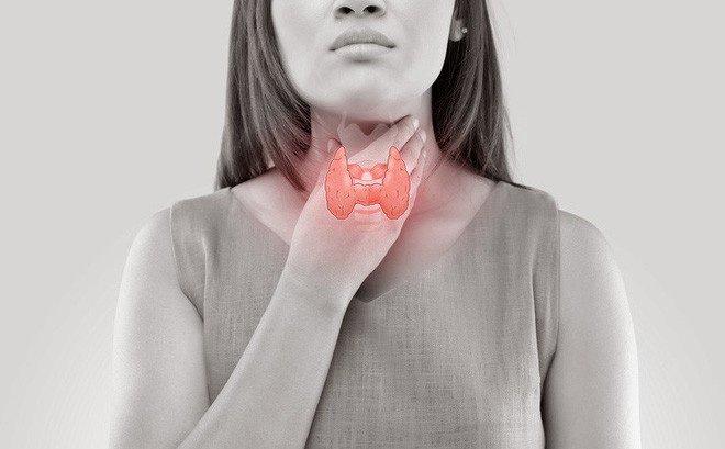 Thiếu hormone tuyến giáp