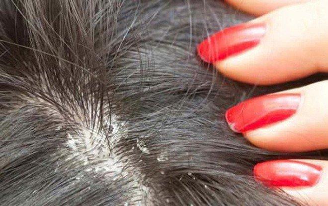 Làm thế nào khi bị nấm da đầu? | Vinmec