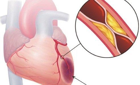 Chẩn đoán bệnh động mạch vành