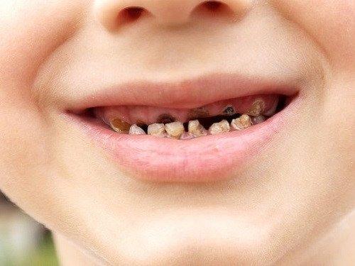 Trẻ 4 tuổi sâu răng hàm