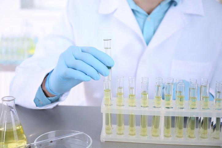 Xét nghiệm nước tiểu bạch cầu cao