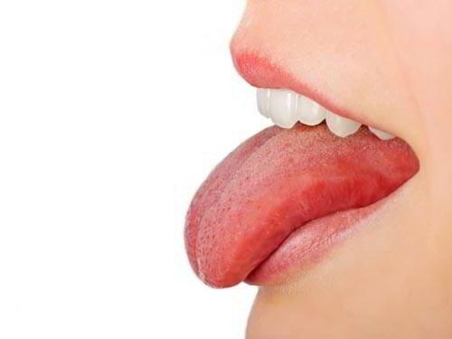 Dấu hiệu ung thư lưỡi