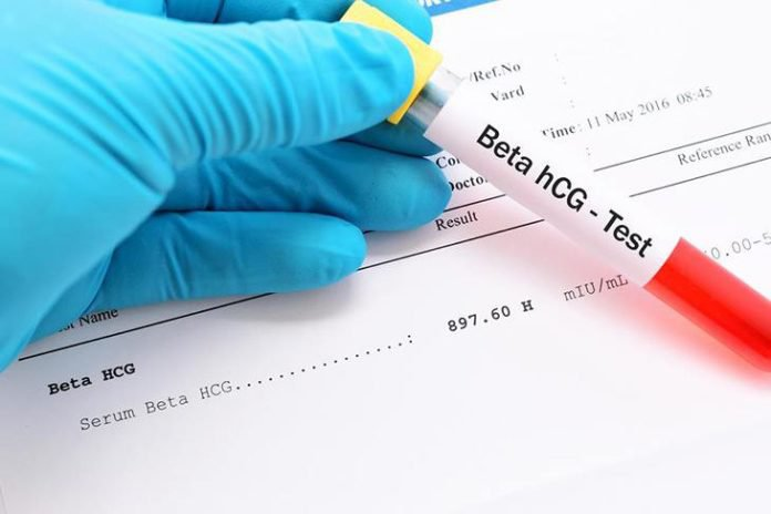 Xét nghiệm HCG