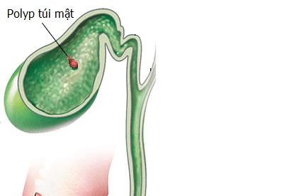 Điều trị polyp túi mật bằng mổ nội soi cắt túi mật