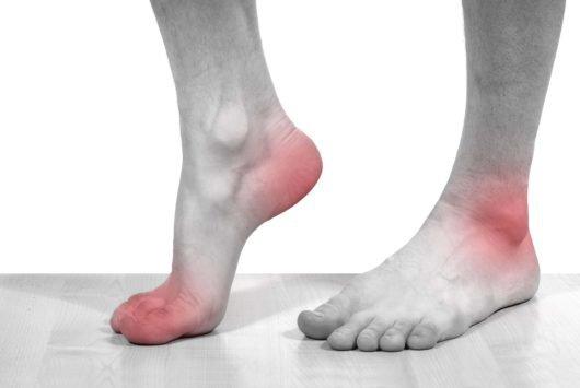 Phòng ngừa và điều trị thoái hóa khớp cổ chân
