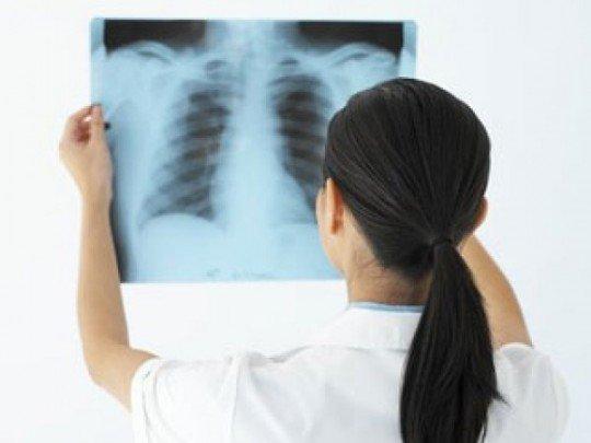 Vai trò của X-quang trong chẩn đoán bệnh khí phế thũng