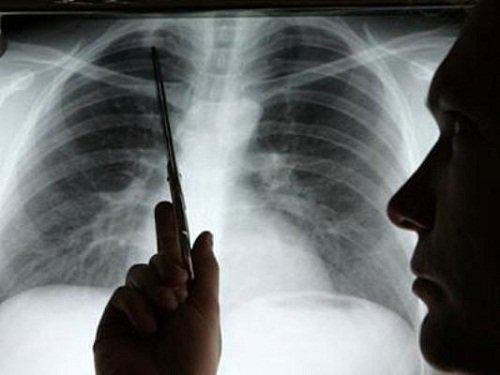 X quang viêm phế quản