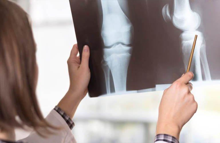 X quang khớp gối