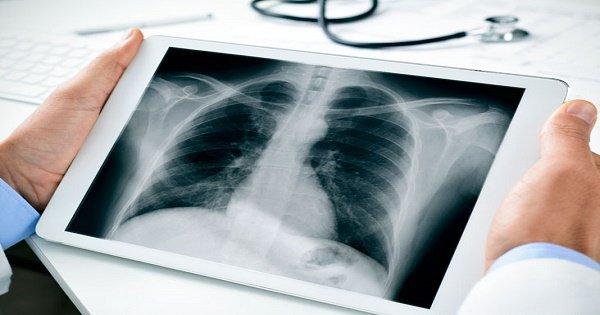 Thế nào là chụp X-quang tim phổi thẳng?