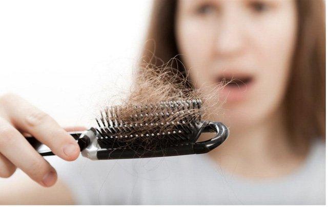 Image result for rụng tóc