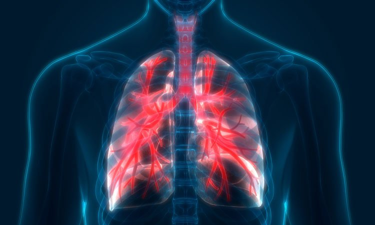 X quang COPD