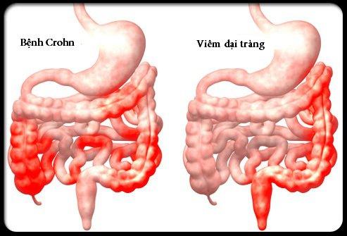 Hội chứng Crohn