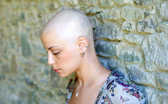 Mọc tóc sau hóa trị ung thư